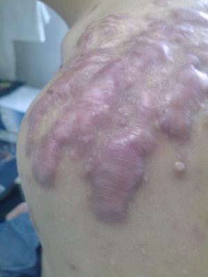 后背长满疤痕疙瘩,针尖的痛,求好心人26-疤痕体质图片_疤痕疙瘩图片-中国疤痕论坛