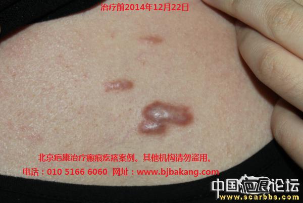 胸部瘢痕疙瘩求助治疗办法