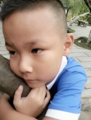 小子摔伤脸上缝5 针,开帖以记录抗痕过程4-疤痕体质图片_疤痕疙瘩图片-中国疤痕论坛