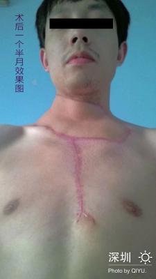 烧烫伤疤的基本常识与常用治疗方法4-疤痕体质图片_疤痕疙瘩图片-中国疤痕论坛