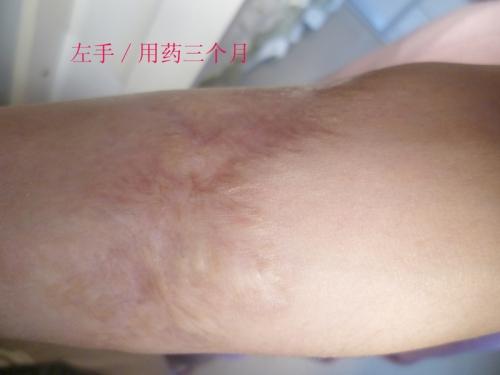 烧烫伤疤的基本常识与常用治疗方法59-疤痕体质图片_疤痕疙瘩图片-中国疤痕论坛