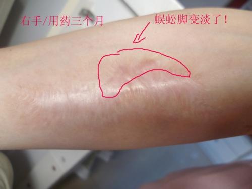 烧烫伤疤的基本常识与常用治疗方法14-疤痕体质图片_疤痕疙瘩图片-中国疤痕论坛