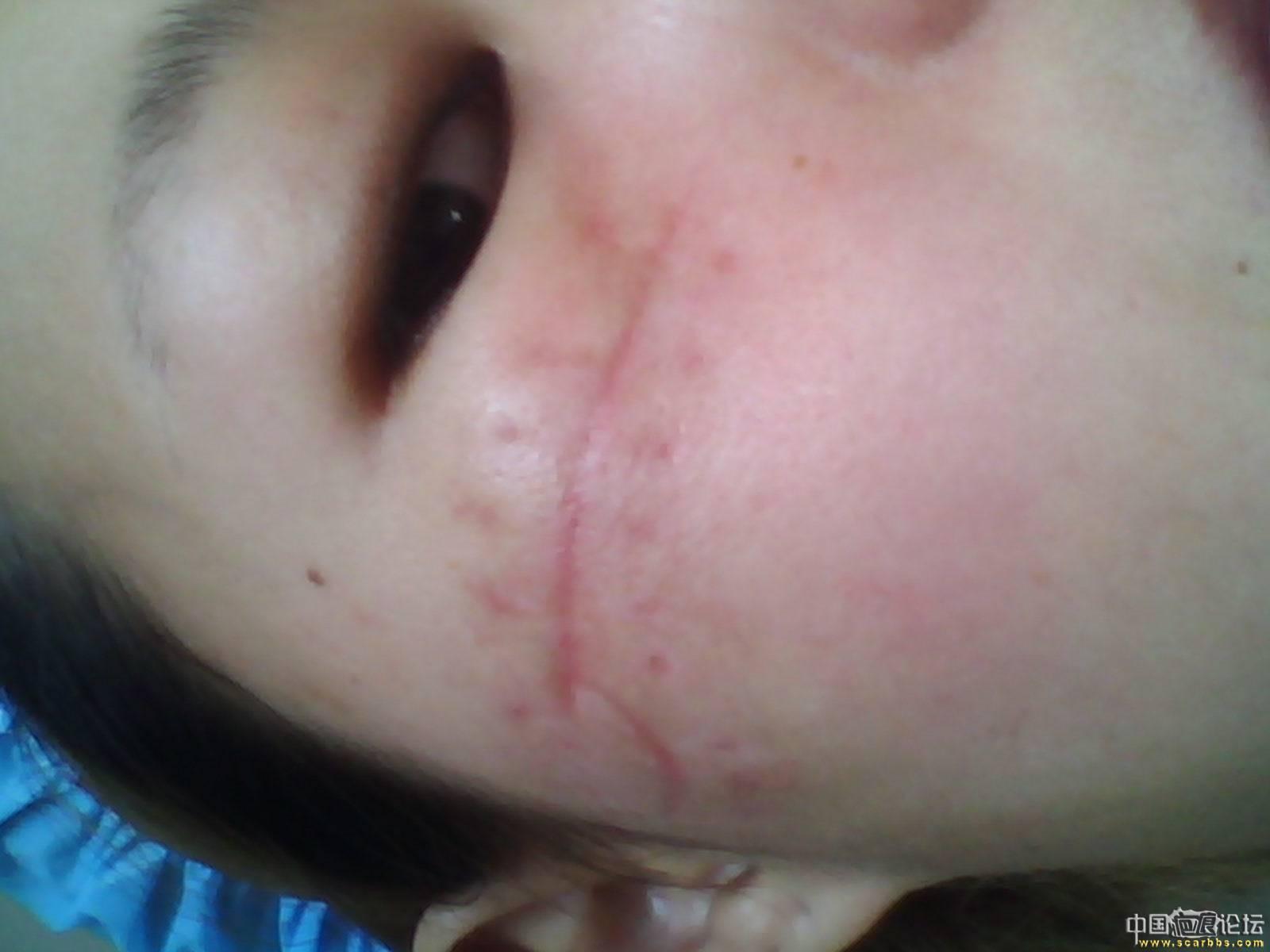 时隔一年·来给大家说下我的恢复情况--凹陷疤痕全部恢复58-疤痕体质图片_疤痕疙瘩图片-中国疤痕论坛