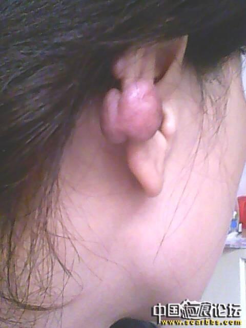 耳廓疤痕疙瘩治疗方法小结56-疤痕体质图片_疤痕疙瘩图片-中国疤痕论坛
