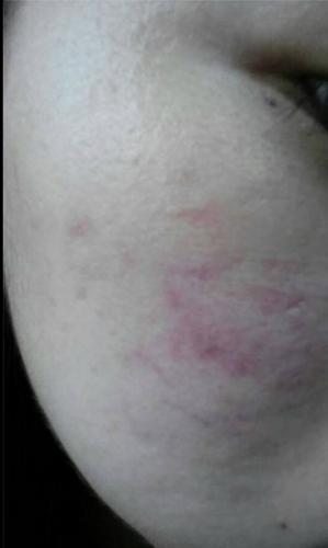 自体细胞移植治疗痘坑,3次注射完毕,等待细胞生长 疤痕,疤痕治疗,疤痕修复,疤痕图片,皮肤,