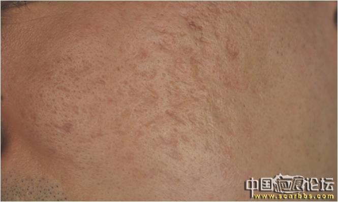 自体成纤维细胞移植术5 低变高的病变