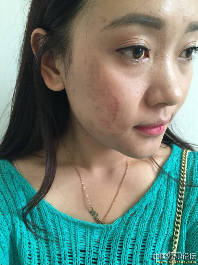 烧烫伤疤的基本常识与常用治疗方法82-疤痕体质图片_疤痕疙瘩图片-中国疤痕论坛