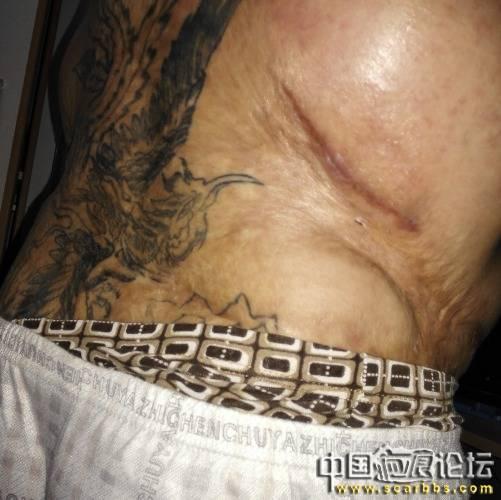 烧烫伤疤的基本常识与常用治疗方法35-疤痕体质图片_疤痕疙瘩图片-中国疤痕论坛