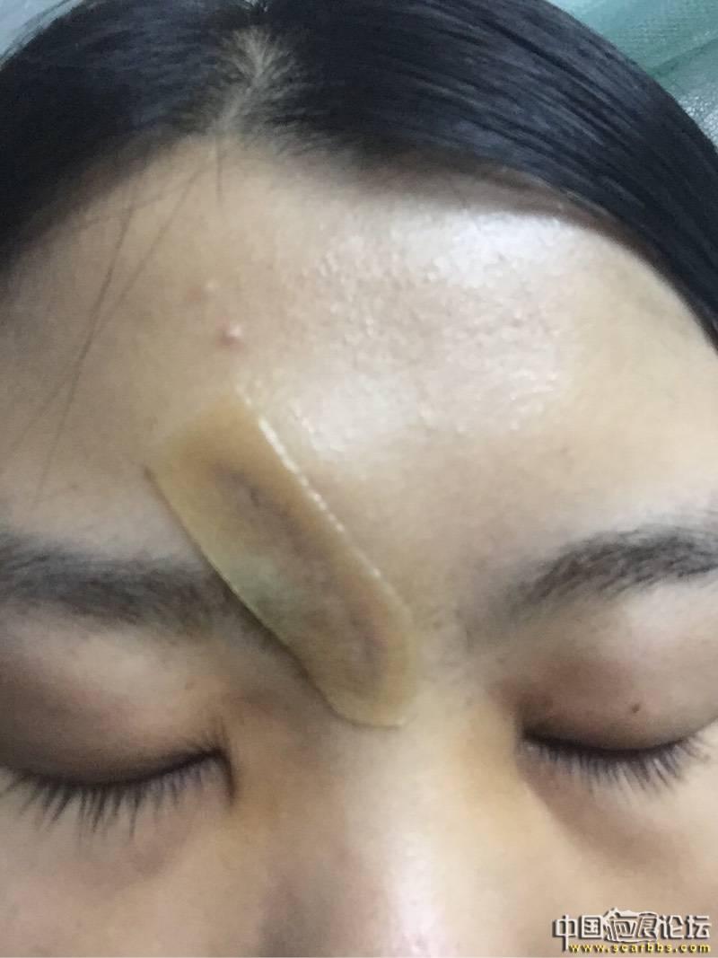 宁波1岁宝宝脸上缝了45针!只因碰到了家里的…………这事最近高发