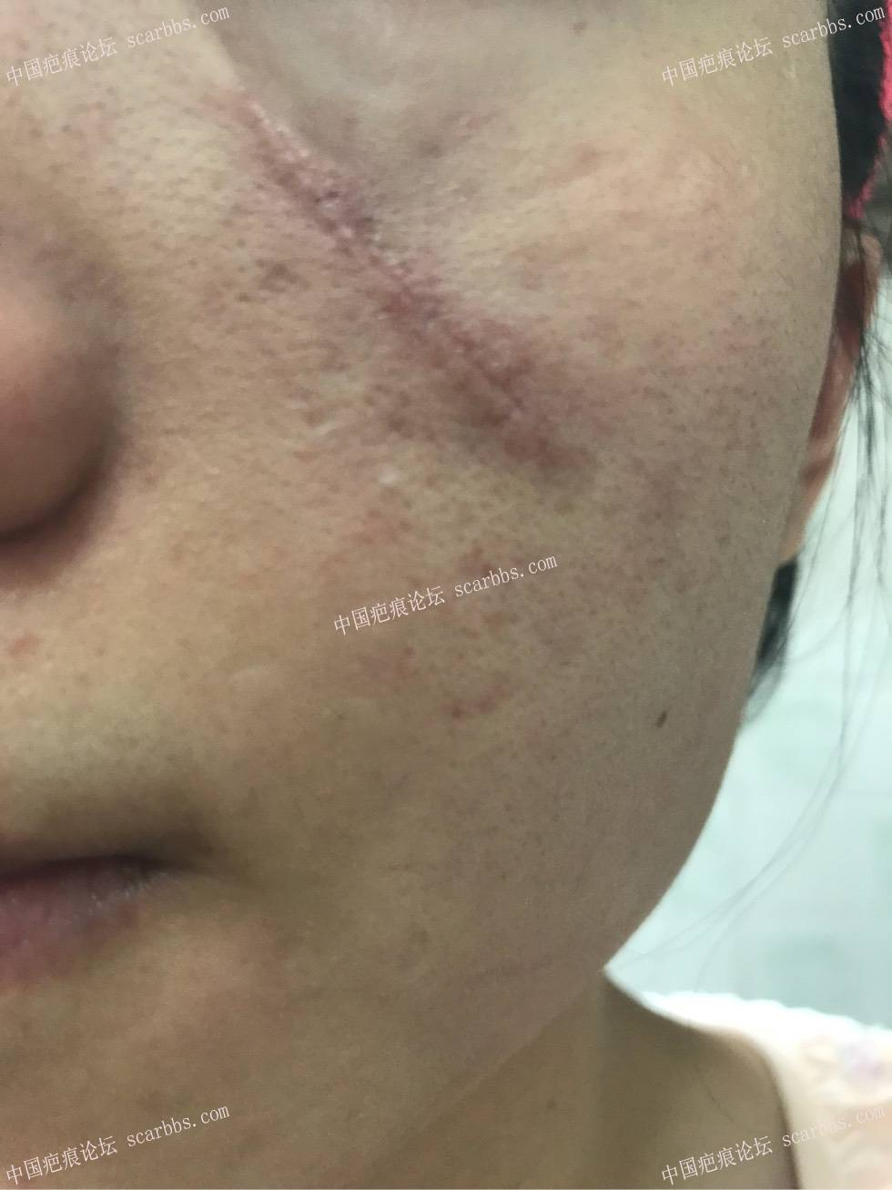 脸上美容线缝针后留下疤痕,颜色不一样_... _好大夫在线网上咨询